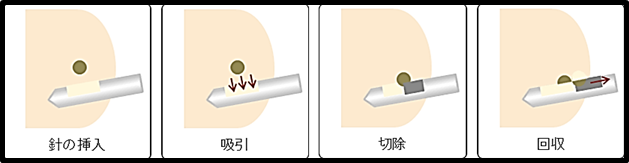 xray-image20