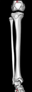 xray-image43