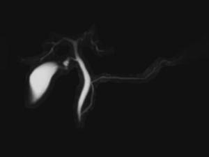 xray-image65